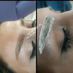 services health-beauty-services health-beauty-services پاک کردن تاتو ابرو