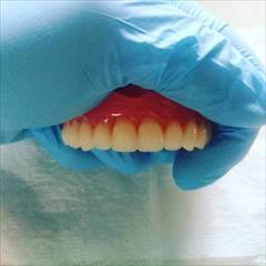 services health-beauty-services health-beauty-services ساخت انواع دندان مصنوعی