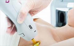 services health-beauty-services health-beauty-services لیزر موهای زائد با دستگاه کندلا