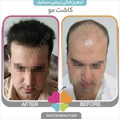 services health-beauty-services health-beauty-services کاشت مو در اصفهان